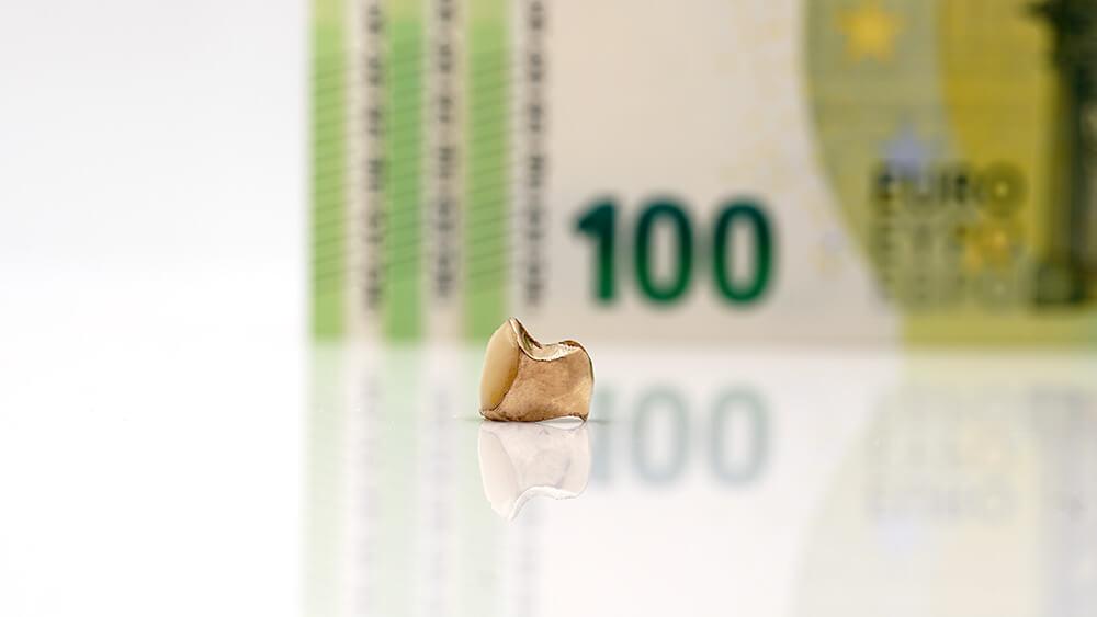 Zahngold Preise aktuell – Zahngold Wert