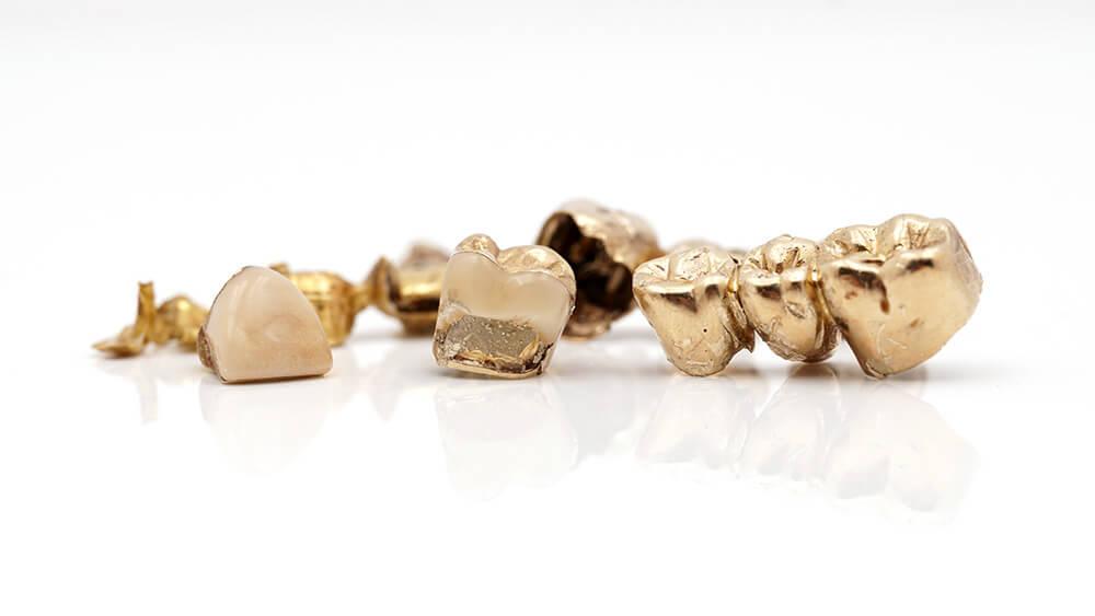 zahngold verkaufen – simply way kg – goldpreis